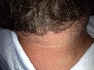 acanthosis of the neck in whites